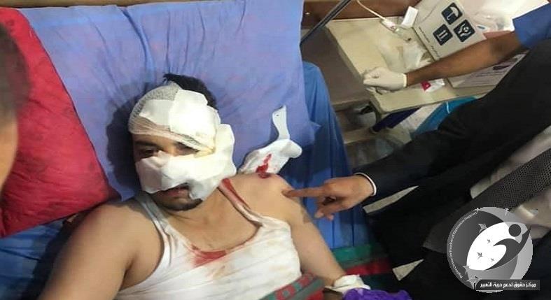 مركز حقوق: حجب محطة تلفزيونية ووفاة متظاهرين اثنين واصابة 70 آخرين بينهم رجال أمن و6 إعلاميين بالرصاص المطاطي والغاز المسيل للدموع في بغداد
